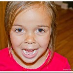 Emma Lost Her First Tooth | Two Rows of Teeth?